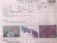公益:救助徽县嘉陵镇张滩村重症患者贺接琴