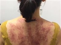 今天做了个精油推背和背部刮痧,结果大片紫黑,请教我该怎么补救呢?