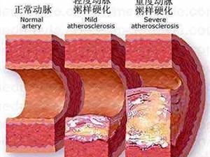 沈阳京都什么是下肢动脉粥样硬化闭塞症