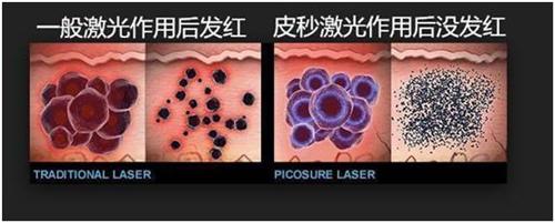 皮秒激光治疗法,是将皮秒激光作用于患处,将色素颗粒击碎为极微小碎屑,通过皮肤脱痂排出,或是血液循环排...